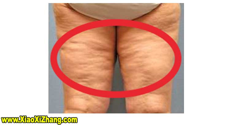 5-Best-Steps-To-Naturally-Remove-Belly-And-Body-Cellulite